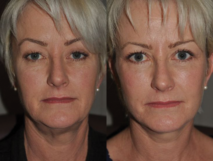 Face / Neck Lift