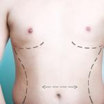mens-surgery1