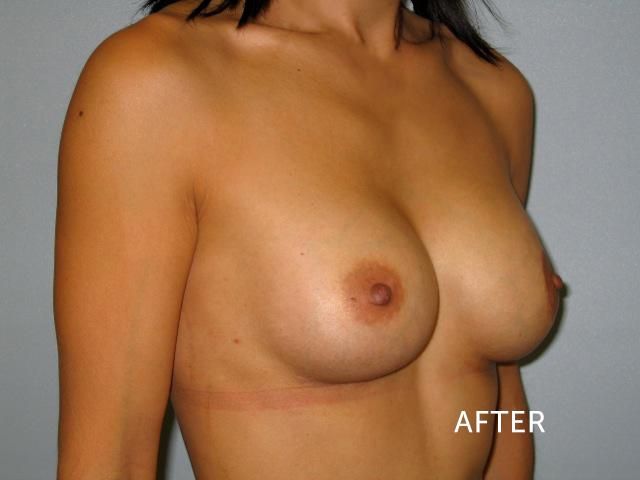 Breat Implants