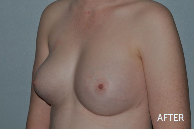 Breast Fat Grafting